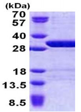 SDS-PAGE - USP15 protein (His tag) (ab167838)