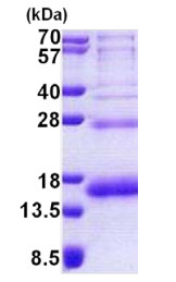 SDS-PAGE - PHF5A protein (His tag) (ab167841)