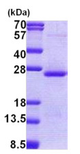 SDS-PAGE - Orosomucoid 2 protein (His tag) (ab167843)