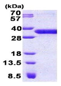 SDS-PAGE - C7orf36 protein (His tag) (ab167865)