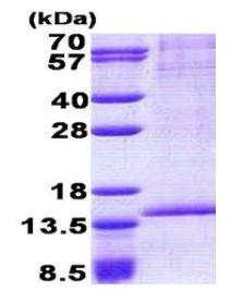 SDS-PAGE - RAB8B protein (His tag) (ab167867)