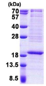 SDS-PAGE - RPL22 protein (His tag) (ab167872)