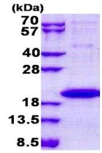 SDS-PAGE - IL36 gamma protein (His tag) (ab167874)