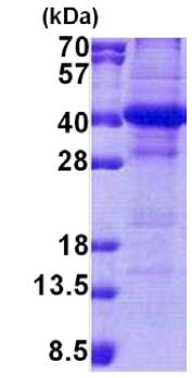 SDS-PAGE - NSL1 protein (His tag) (ab167875)