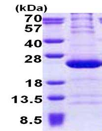 SDS-PAGE - RPL11 protein (His tag) (ab167891)