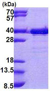 SDS-PAGE - TTC35 protein (His tag) (ab167894)