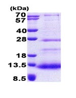 SDS-PAGE - SPINK7 protein (His tag) (ab167899)