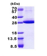 SDS-PAGE - STOM protein (His tag) (ab167901)