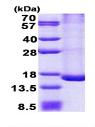 SDS-PAGE - TRAPPC2L protein (His tag) (ab167906)