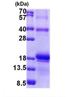 SDS-PAGE - IL17F protein (His tag) (ab167911)