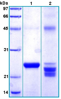 SDS-PAGE - RAET1G protein (His tag) (ab167931)