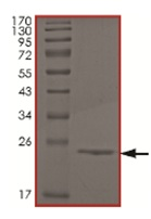 SDS-PAGE - NCE2 protein (His tag) (ab167934)