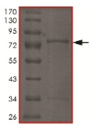 SDS-PAGE - CDKL2 protein (Tagged) (ab167948)