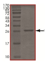 SDS-PAGE - UCHL3 protein (His tag) (ab167959)