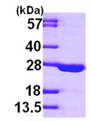SDS-PAGE - Adenylate Kinase 1 protein (Active) (ab167983)