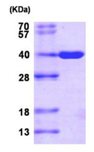 SDS-PAGE - AKR1C3 protein (Active) (ab167984)