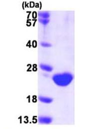 SDS-PAGE - DUSP3 protein (Active) (ab168010)