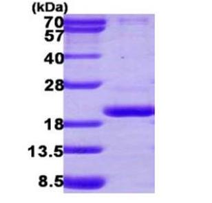 SDS-PAGE - PPIL3 protein (Active) (ab168016)