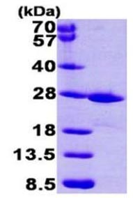 SDS-PAGE - FKBP14 protein (Active) (ab168042)