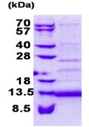 SDS-PAGE - CD59 protein (Tagged-His Tag) (ab168079)