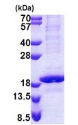 SDS-PAGE - RNA polymerase II RPB4 protein (His tag) (ab168087)