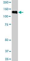 Western blot - Anti-eIF4ENIF1 antibody (ab168098)