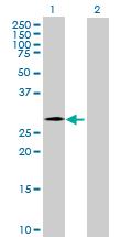 Western blot - Anti-CHMP4C antibody (ab168205)