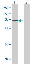 Western blot - Anti-Protocadherin 21 antibody (ab168220)