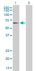Western blot - Anti-CNKSR3 antibody (ab168304)