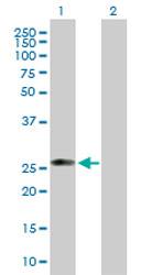 Western blot - Anti-CTRP5 antibody (ab168314)