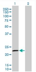 Western blot - Anti-RASGEF1B antibody (ab168323)