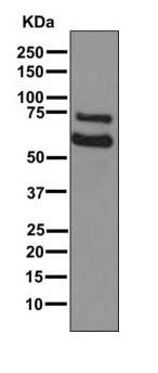 Western blot - Anti-COL23A1 antibody [EPR6066(2)(B)] (ab168356)