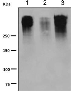 Western blot - Anti-MUC16 antibody [EPSISR23] (ab168360)
