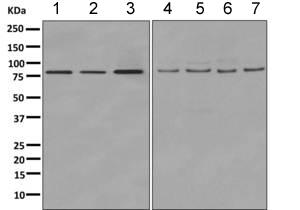 Western blot - Anti-COG7 antibody [EPR9942] (ab168362)