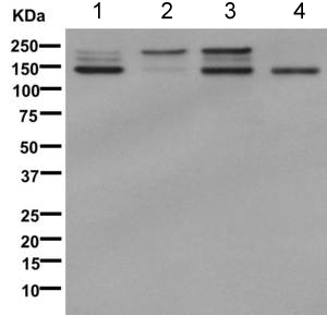 Western blot - Anti-Integrin beta 4 antibody [EPR8558(2)] (ab168386)