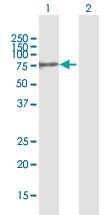Western blot - Anti-GALNT10 antibody (ab168400)
