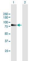 Western blot - Anti-SP110 antibody (ab168401)
