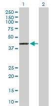 Western blot - Anti-HLA A2 antibody (ab168405)