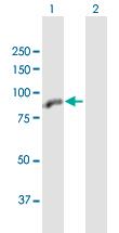 Western blot - Anti-ZBTB48 antibody (ab168417)