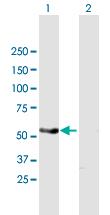 Western blot - Anti-PAK1 antibody (ab168439)