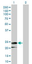Western blot - Anti-IFNA14 antibody (ab168449)