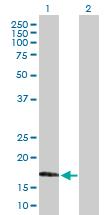 Western blot - Anti-MAFG antibody (ab168453)