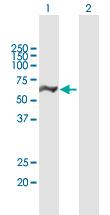 Western blot - Anti-DDX19B antibody (ab168484)