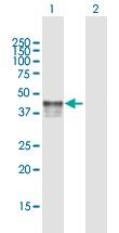 Western blot - Anti-P2Y2 antibody (ab168535)