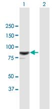 Western blot - Anti-RASAL1 antibody (ab168610)