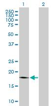 Western blot - Anti-PTP4A1 antibody (ab168643)
