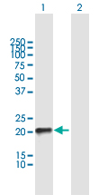Western blot - Anti-TC10 antibody (ab168645)