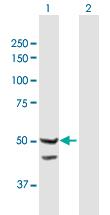Western blot - Anti-TIMM44 antibody (ab168649)