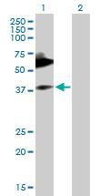 Western blot - Anti-MICA antibody (ab168738)