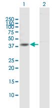 Western blot - Anti-Dystrobrevin alpha antibody (ab168741)